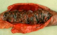 über Sektion - Ileitis
